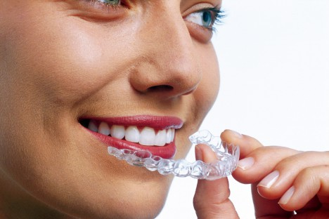 Unsichtbare Zahnspange - Invisalign