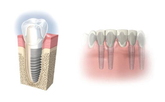 Zahnimplantate der Zahnkultur Berlin